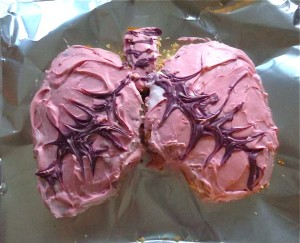 GC's Pink Lung Cake by Zoom!